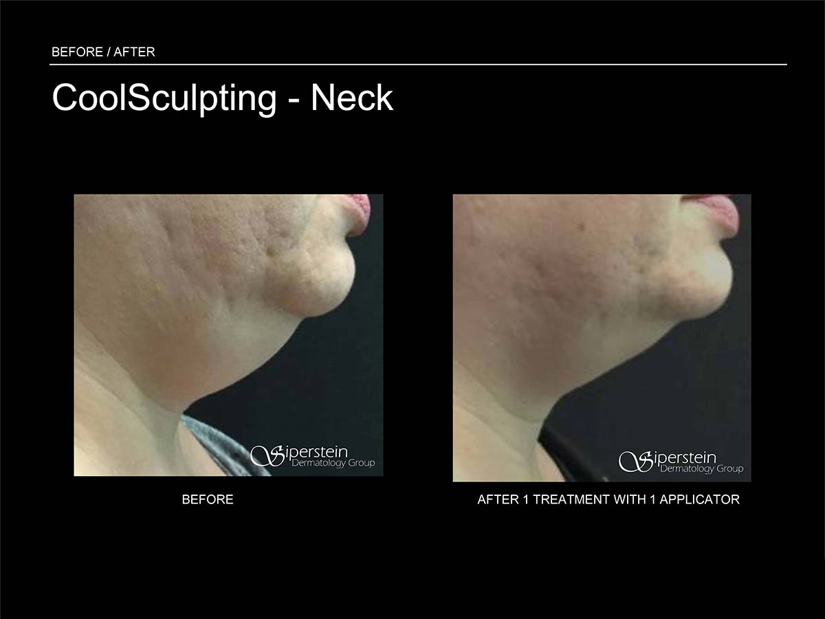 coolsculpting neck side view