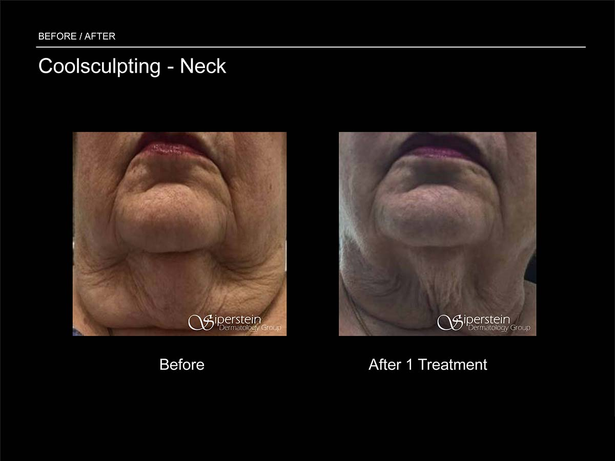 coolsculpting neck treatment