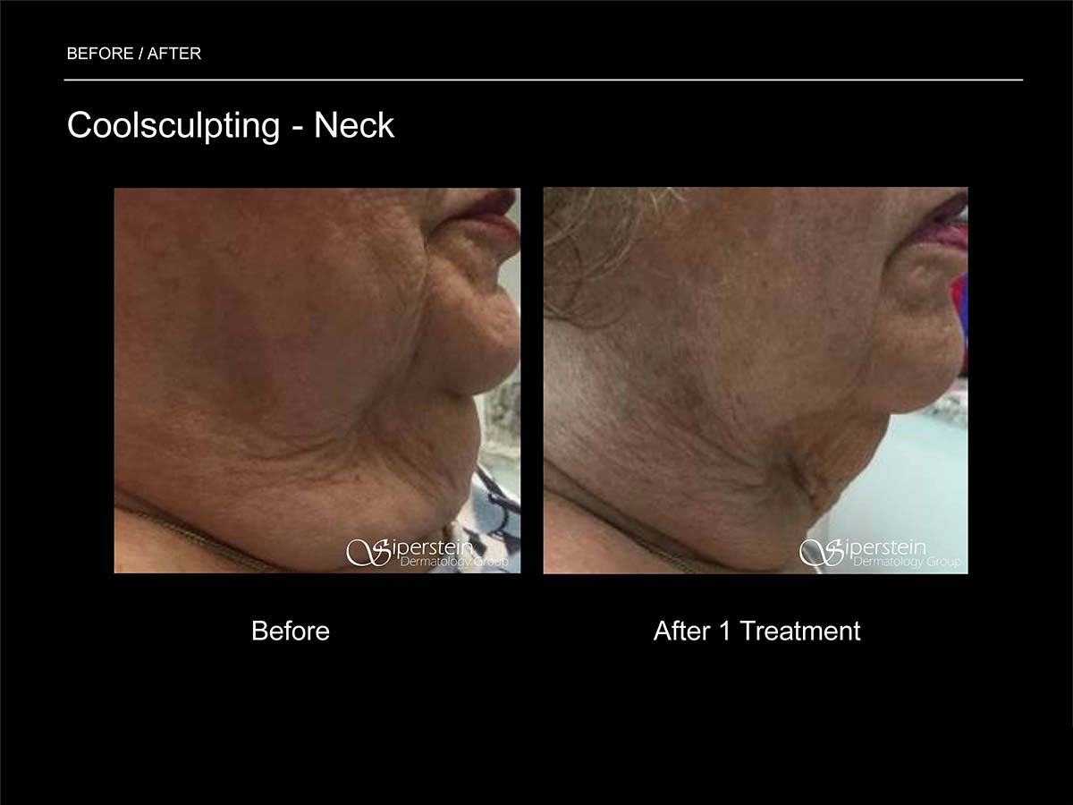 coolsculpting neck treatment side view