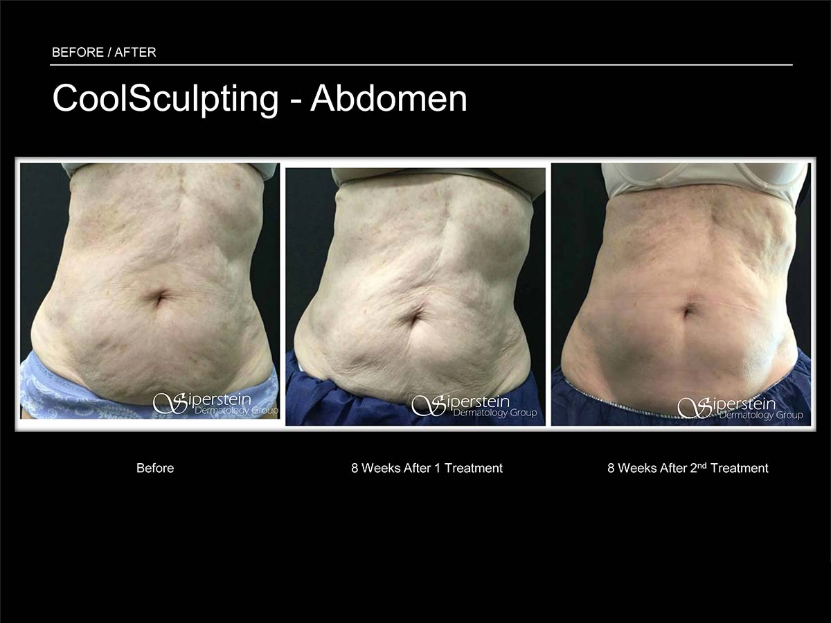 coolsculpting abdomen several treatments
