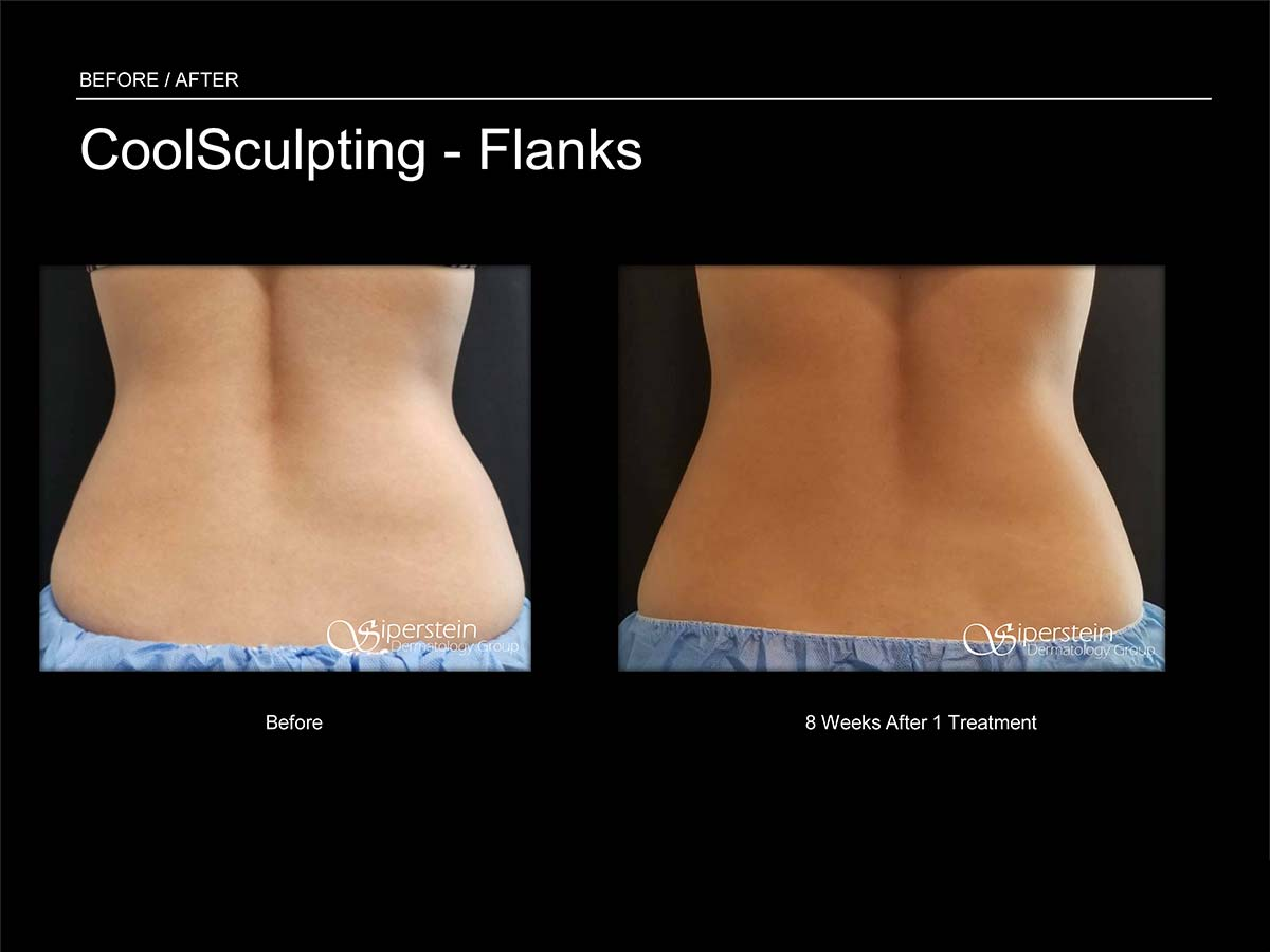 coolsculpting planks treatment
