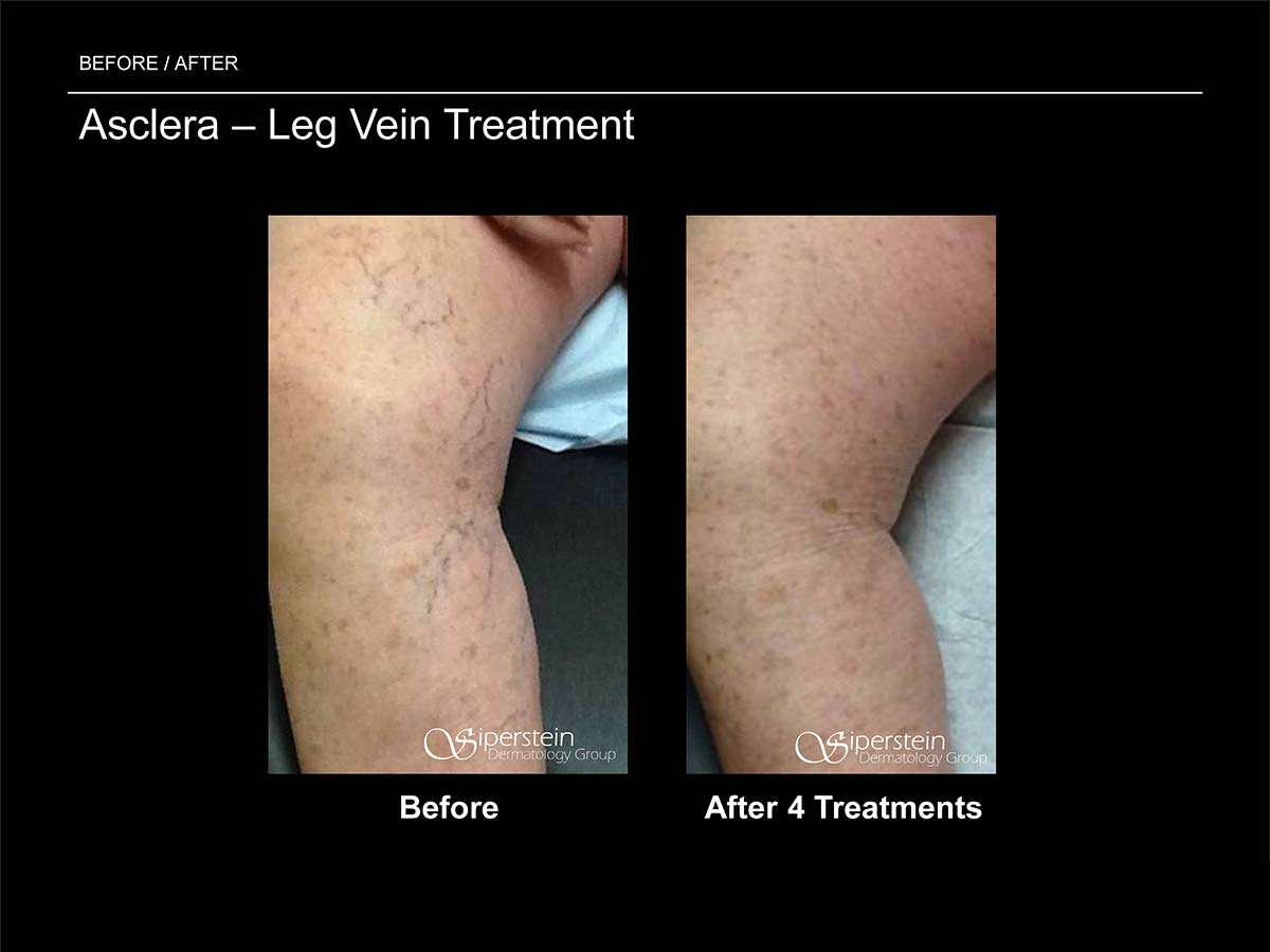 asclera leg vein treatment