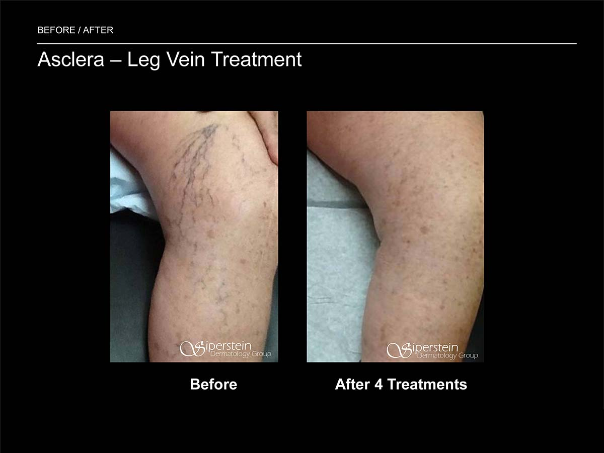 asclera leg vein treatment after 4 weeks