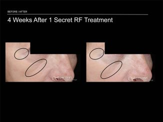 Cutera Secret Microneedling