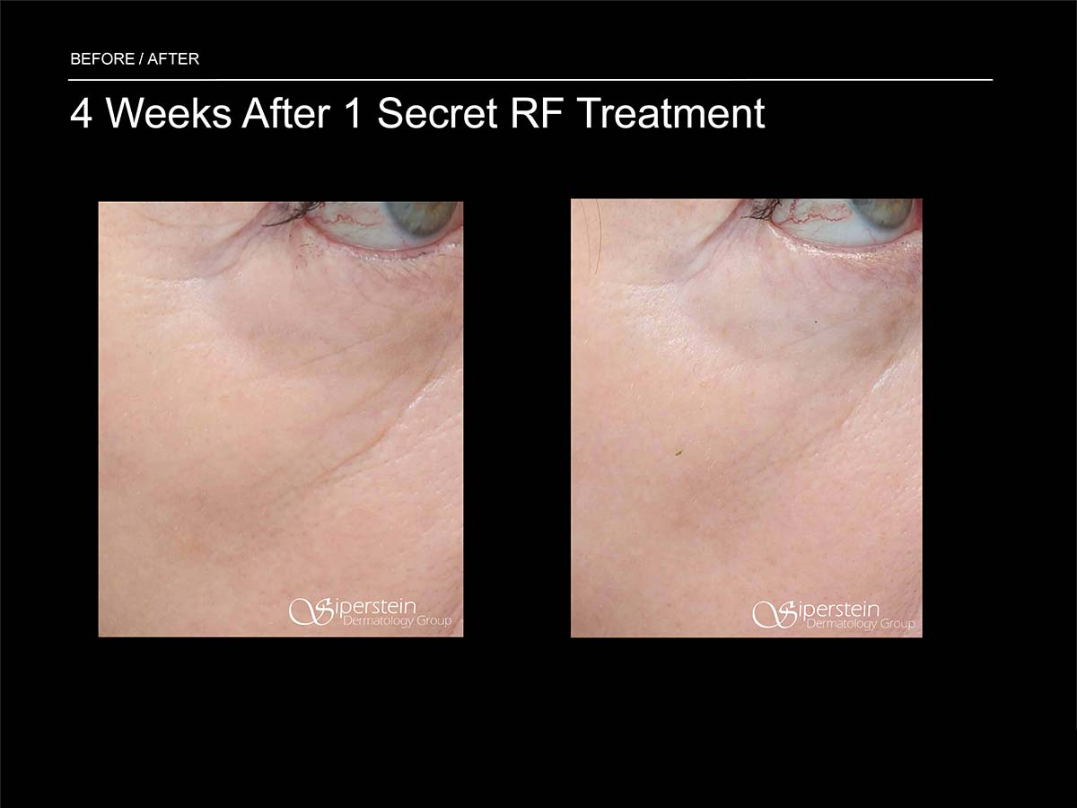 4 weeks after 1 secret rf treatment under eye