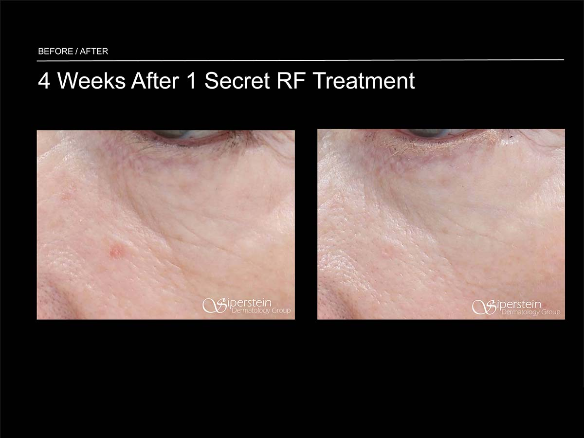 under eye secret rf treatment