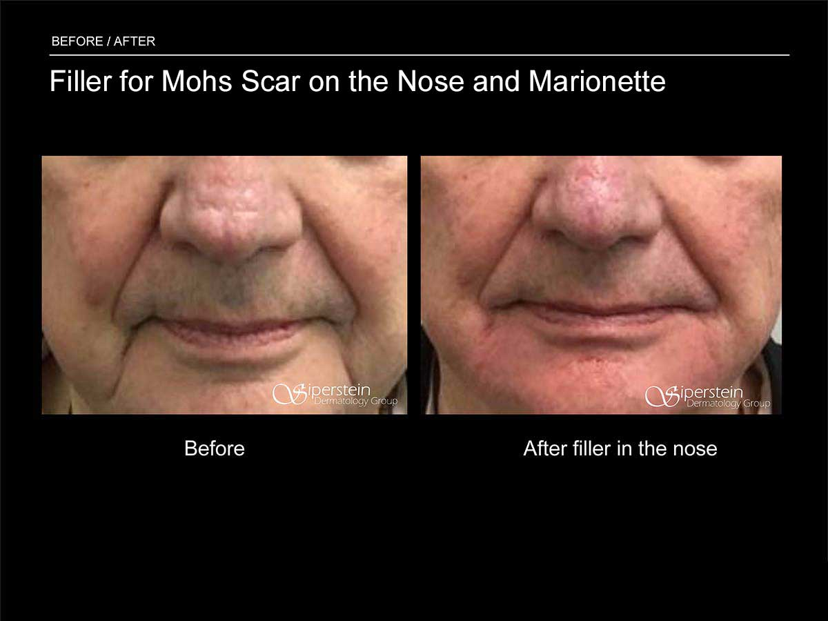 Filler for Mohs Scar on the Nose and Marionette