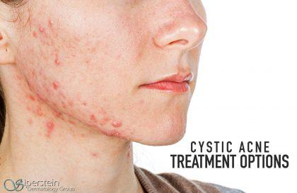 Cystic Acne Treatment