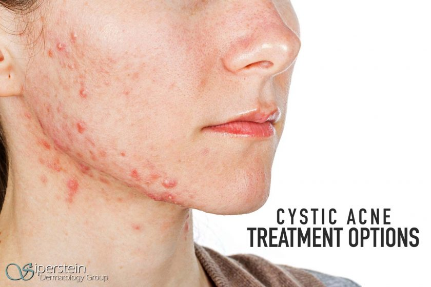 how to know if you have cystic acne