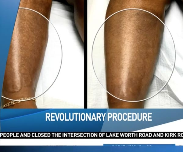 CBS PALM BEACH revolutionary procedure helps burn victim