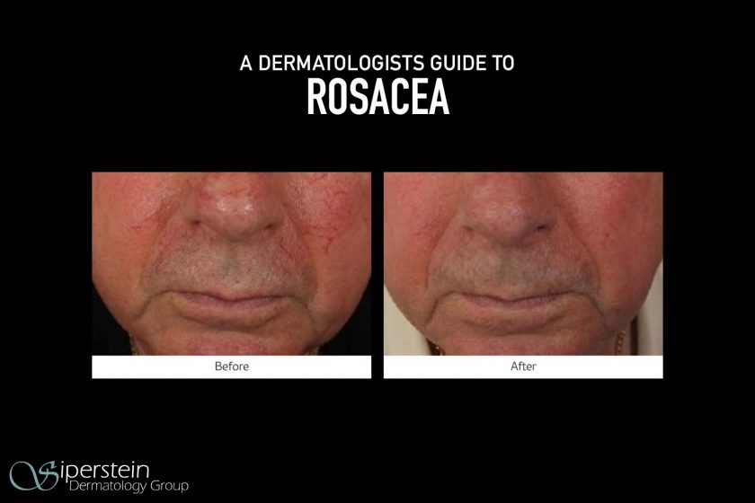 Dermatologists-Guide-To-Rosacea