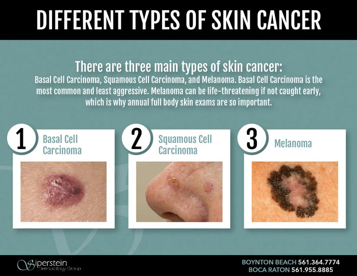 Different types of skin cancer