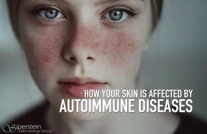 Autoimmune-Diseases