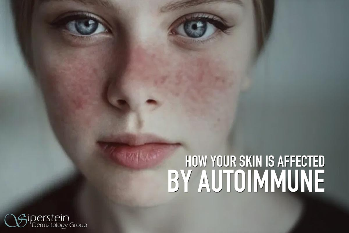 The Link Between Autoimmune Diseases And Your Skin