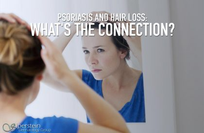 Psoriasis And Hair Loss