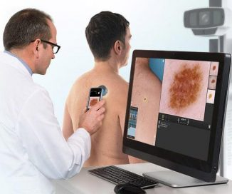 photo of dermagraphix mole mapping