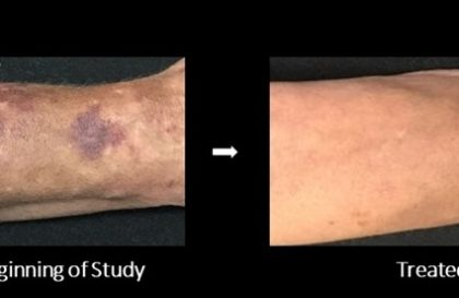 Senile Purpura Treatment - Before and After Images