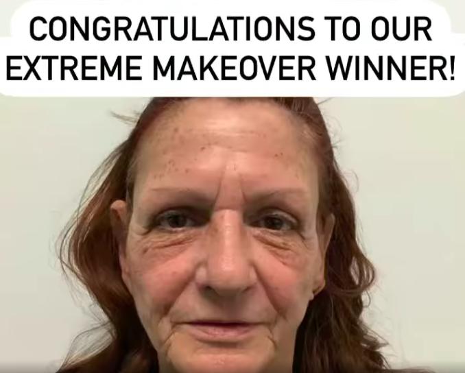 Siperstein Dermatology extreme makeover winner