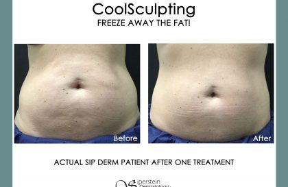 Coolsculpting Before and After Images - stomach fat
