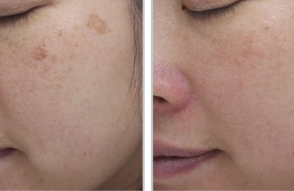 Moxi Laser Before and After Images